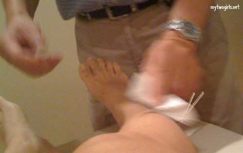 Acupuncture on my leg